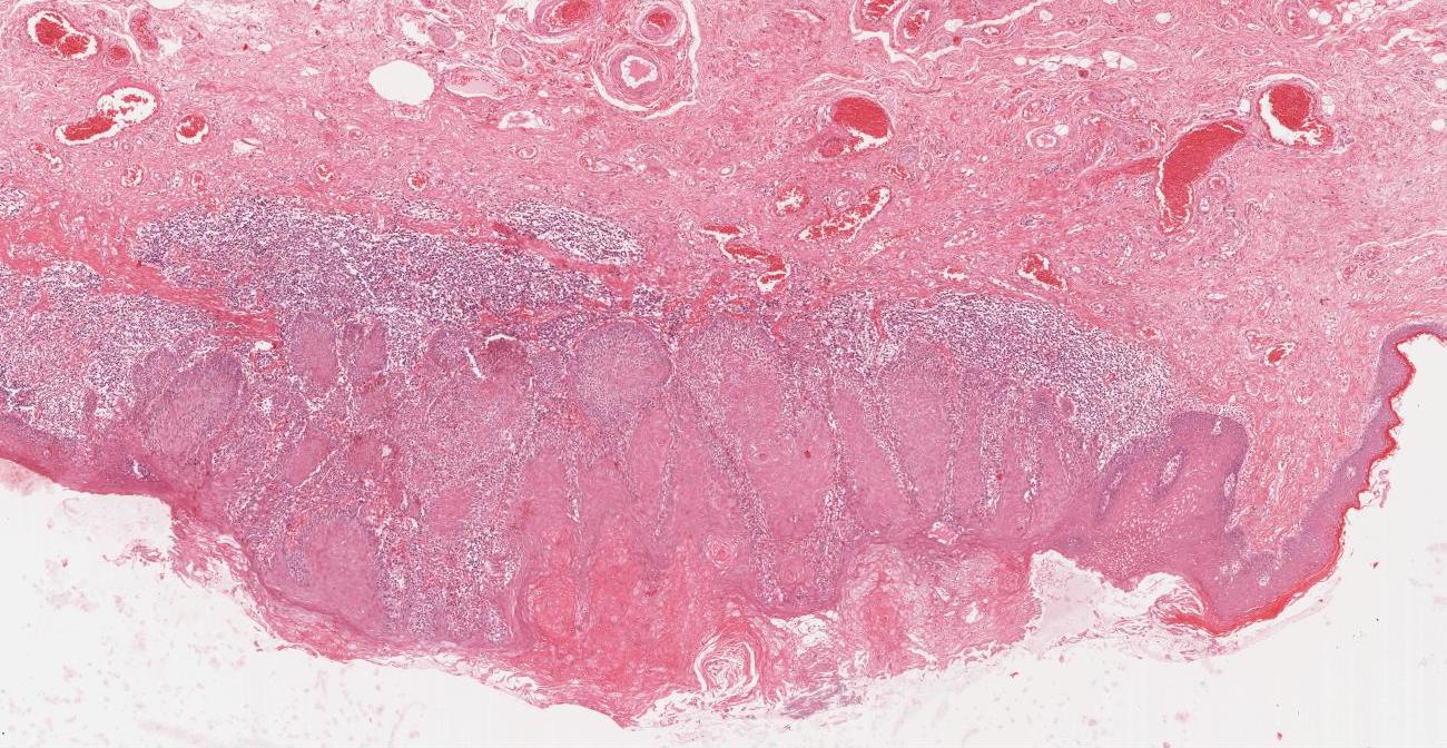 Biopsy 1